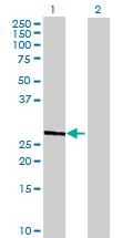 Western blot - TMEM38A antibody (ab68867)