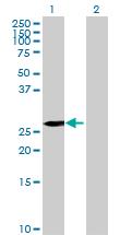 Western blot - KCTD15 antibody (ab68869)