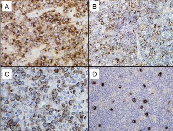 Immunohistochemistry (Formalin/PFA-fixed paraffin-embedded sections) - GCET1 antibody [RAM341] (ab68889)