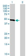 Western blot - SLC25A23 antibody (ab68901)