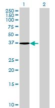 Western blot - FA2H antibody (ab68902)