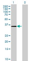 Western blot - CRELD2 antibody (ab68903)