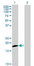 Western blot - ZNF576 antibody (ab68904)