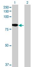 Western blot - GLB1L antibody (ab68905)