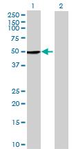 Western blot - KREMEN2 antibody (ab68906)