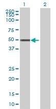 Western blot - LRRC2 antibody (ab68909)