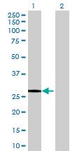 Western blot - FYCO1 antibody (ab68914)