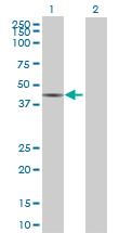 Western blot - NARG2 antibody (ab68929)