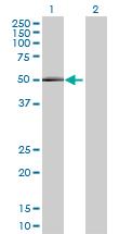 Western blot - GAL3ST4 antibody (ab68930)