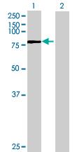 Western blot - RAB11FIP5 antibody (ab68947)