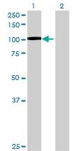 Western blot - ANKRD17 antibody (ab68948)