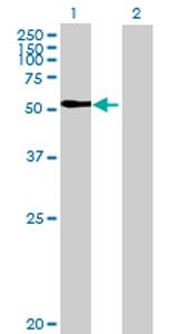 Western blot - KIAA1279 antibody (ab68955)
