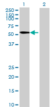 Western blot - TINAGL1 antibody (ab69036)