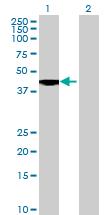 Western blot - ERAP2 antibody (ab69037)