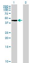 Western blot - DPEP2 antibody (ab69038)
