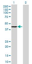 Western blot - ARL6IP2 antibody (ab69040)