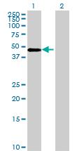 Western blot - ZDHHC11 antibody (ab69042)