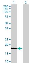 Western blot - BAALC antibody (ab69043)