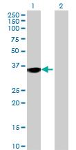 Western blot - NUDT18 antibody (ab69044)
