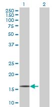 Western blot - RPP21 antibody (ab69048)