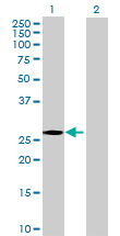 Western blot - FLJ14154 antibody (ab69049)