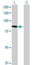 Western blot - NOL10 antibody (ab69051)