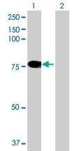 Western blot - GRHL2 antibody (ab69052)