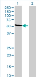 Western blot - Anti-TRMT2B antibody (ab69053)