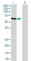 Western blot - CHST8 antibody (ab69064)