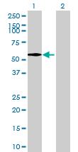 Western blot - GMCL1L antibody (ab69065)