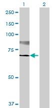 Western blot - ST6GALNAC1 antibody (ab69066)
