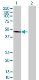 Western blot - ALLC antibody (ab69067)