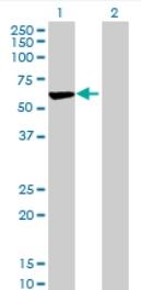 Western blot - ARHGAP15 antibody (ab69068)