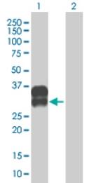 Western blot - C2orf3 antibody (ab69069)