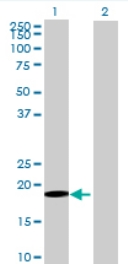 Western blot - GLT28D1 antibody (ab69070)