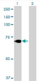 Western blot - Acetyl CoA synthetase antibody (ab69074)