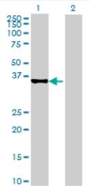 Western blot - SLC25A40 antibody (ab69075)