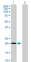 Western blot - NRSN2 antibody (ab69146)