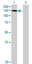 Western blot - DDX24 antibody (ab69148)