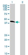Western blot - ZFP2 antibody (ab69149)