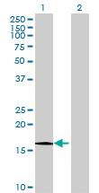 Western blot - HRAS like suppressor antibody (ab69151)