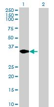 Western blot - CXorf21 antibody (ab69152)