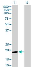 Western blot - DBF4B antibody (ab69154)