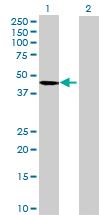 Western blot - C16orf70 antibody (ab69155)