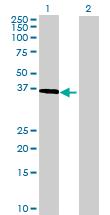 Western blot - Deleted in azoospermia 4 antibody (ab69157)