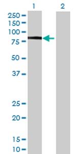 Western blot - PLEKHO2 antibody (ab69160)