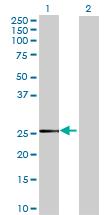 Western blot - BDH2 antibody (ab69161)