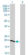 Western blot - OPA3 antibody (ab69163)