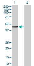 Western blot - SPG11 antibody (ab69164)