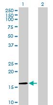 Western blot - C2orf28  antibody (ab69165)